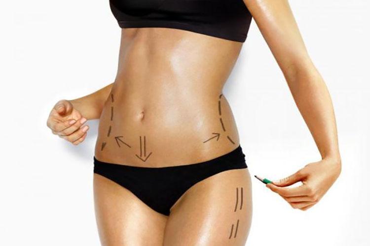 Vaser 4D: Χάστε το λίπος από το σώμα σας σε χρόνο μηδέν!