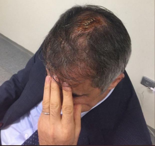 Πέντε ράμματα στο νοσοκομείο ο Γκιουνές, οριστική διακοπή στο Φενέρ – Μπεσίκτας (photos)