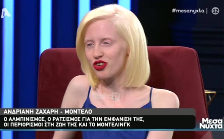 Μοντέλο με αλφισμό: Μητέρα είπε στο παιδί της να μην κάτσει δίπλα μου για να μην κολλήσει